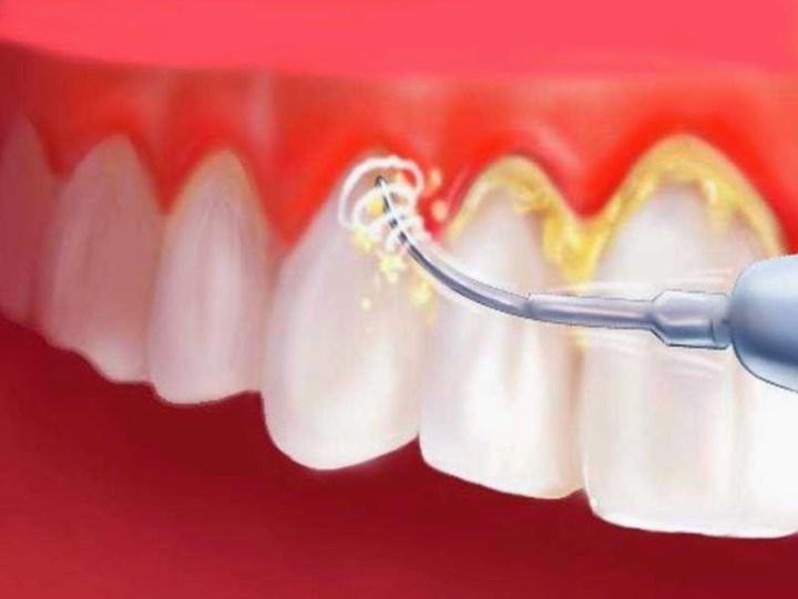 Рис. 1. Удаление зубного камня ультразвуком